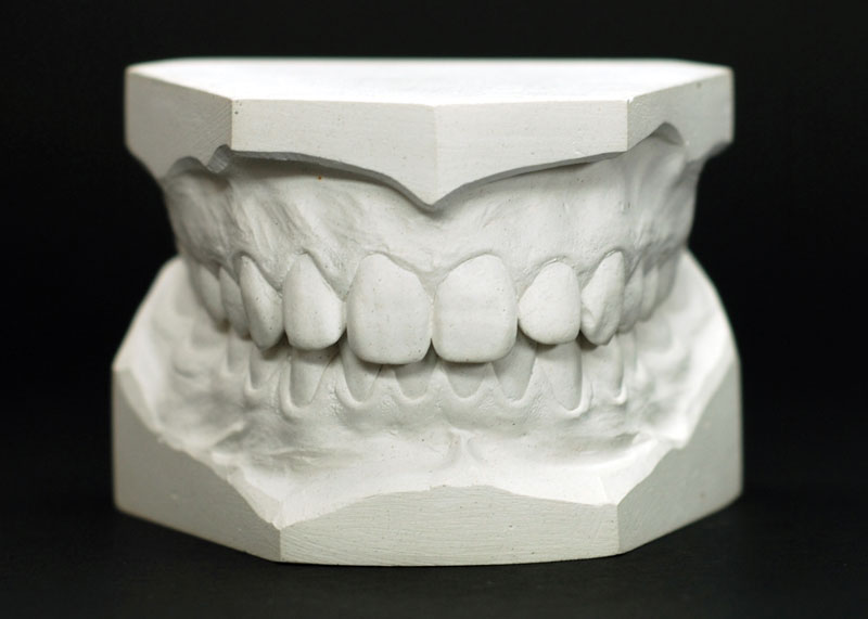 use of plaster of paris by dentists